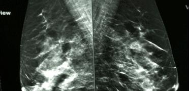 Curso Teórico de Mamografía