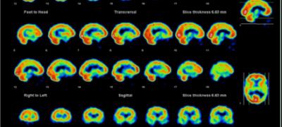 Curso Teórico de Medicina Nuclear