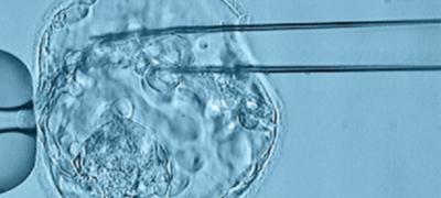 Imagen de Biopsia Embrionaria