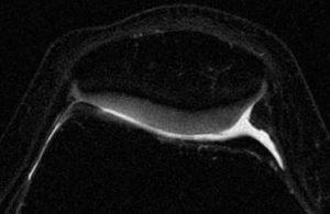 Cartílago rotuliano sin lesiones. Se aprecia su superficie regular al contrastar con el líquido articular.