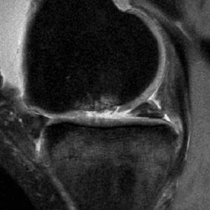 Lesión de grado III en el cartílago troclear. Se aprecian roturas profundas del cartílago y edema intraóseo reactivo.