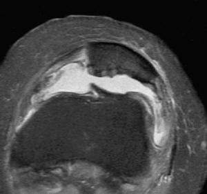 Lesiones de grado IV. Pérdida total del cartílago rotuliano, derrame intraarticular y formación de osteofitos.