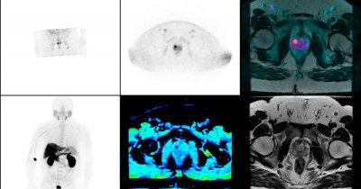Próximamente: I Curso de PET/RM con trazadores prostáticos específicos en el manejo de los pacientes con cáncer de próstata